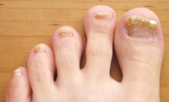Як позбутися від грибка на нігтях