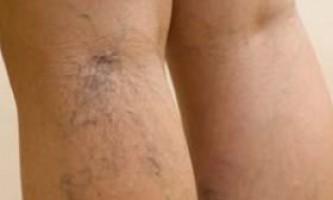 Як лікувати варикоз вен на ногах