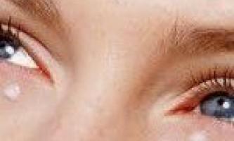 Як доглядати за шкірою навколо очей після 30 років