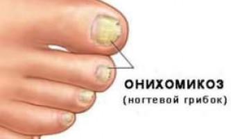 Лікування нігтьового грибка на ногах