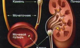 Причини утворення каменів в нирках