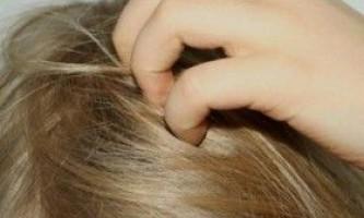 Сверблячка голови і випадання волосся